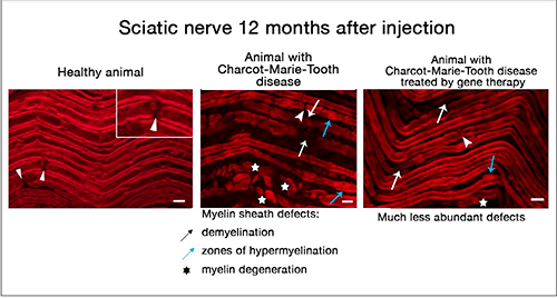 Illustration of nerve injection - Gene therapy test - CMT