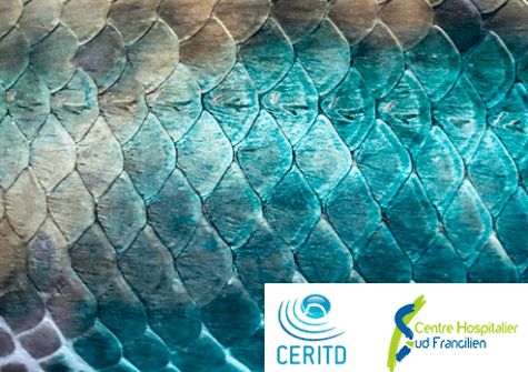 Treatment of diabetic wounds from fish skin
